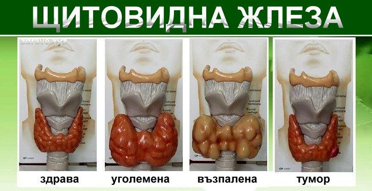Щитовиждна жлеза, различните форми